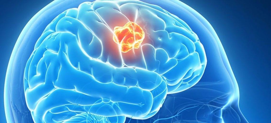 Научно-практическая конференция с международным участием «Прогресс в динамике и лечении эпилепсии»